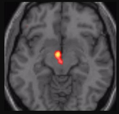 Aşırı Bilimsel Makale: Aşk Beyine Ne Eder? Bilimsel sonuç; Yapraklarını yerken iyi de sapına gelince kötü... ask beyin 1