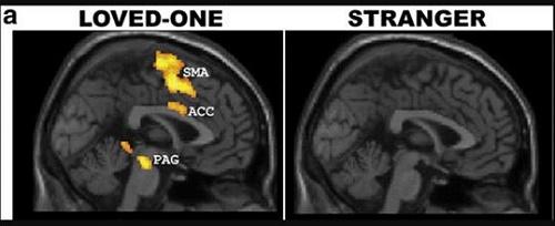 Aşırı Bilimsel Makale: Aşk Beyine Ne Eder? Bilimsel sonuç; Yapraklarını yerken iyi de sapına gelince kötü... ask beyin 2